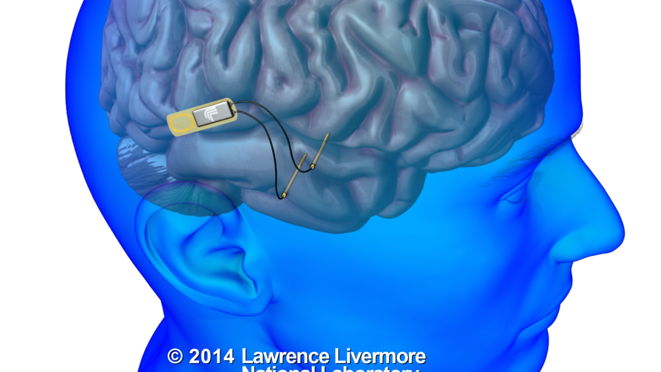 Kernel's brain prosthetic to stimulate neurons in brain