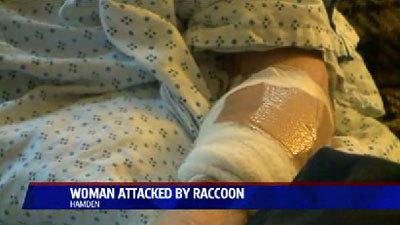 Hamden Woman Attacked By Raccoon