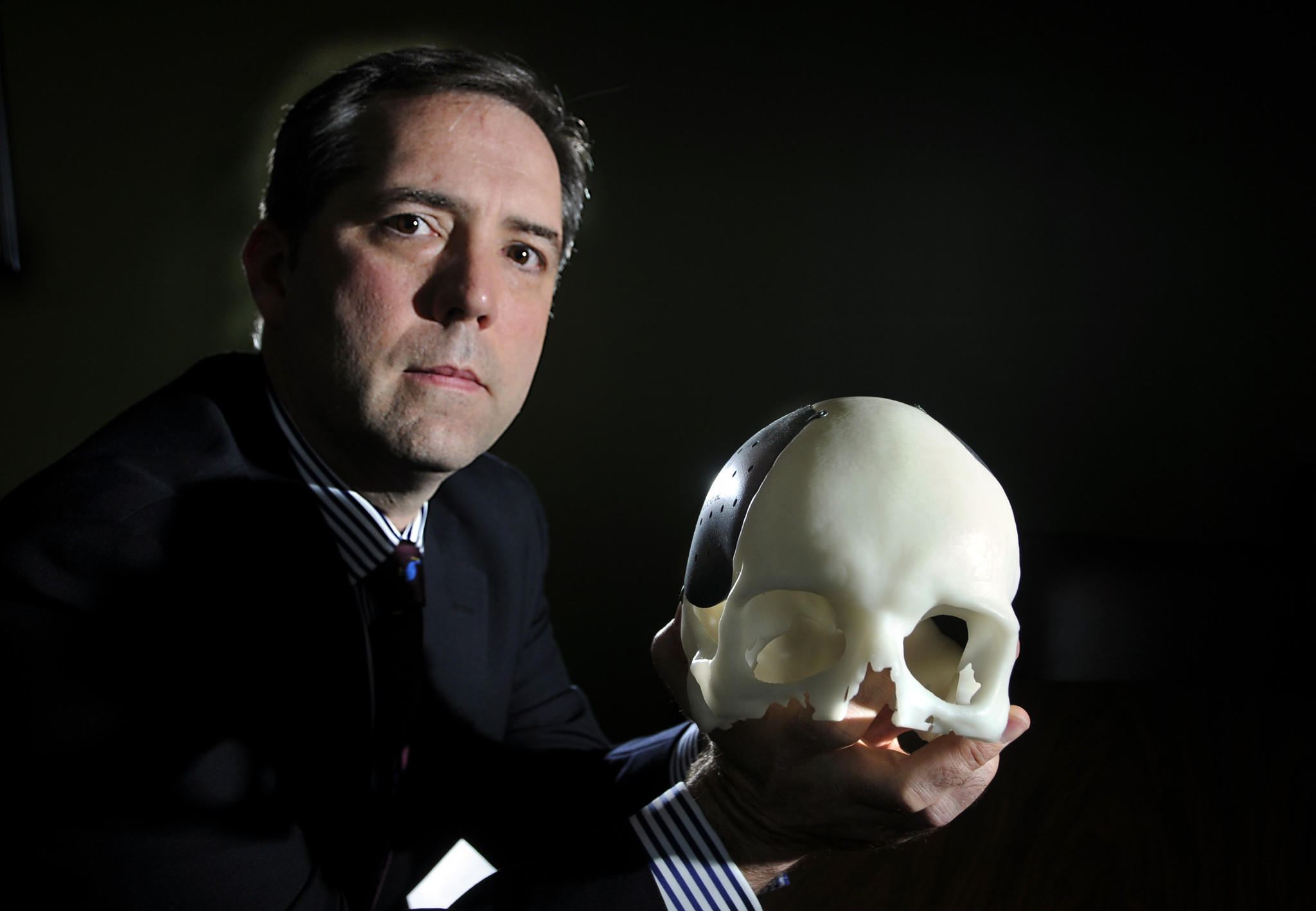 Tennyson Anthony is president and CEO of Kelyniam Global, a small engineering/manufacturing firm that makes custom skull implants. Anthony is holding an example of one of their implants on a model of a skull used for fitting.