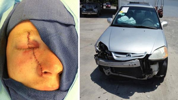Corey Burdick, left, and the 2001 Honda Civic Corey he was driving when he crashed.
