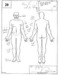 Ezell Ford autopsy