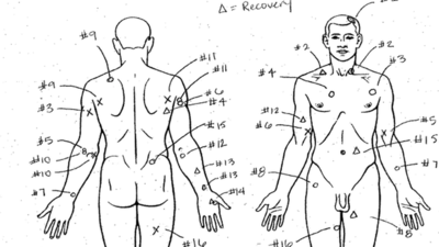Laquan McDonald's wounds