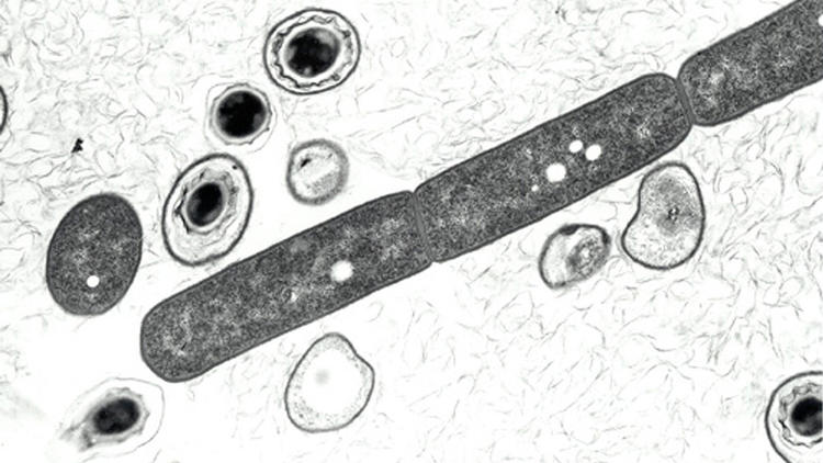 Anthrax cells and spores