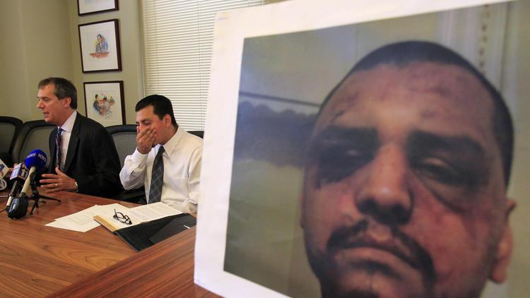 L.A. County sheriff's deputies' trial