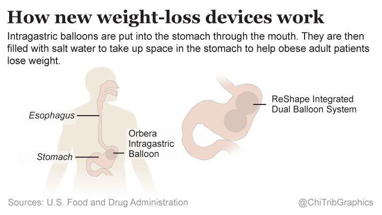 How new weight-loss devices work (diagram)