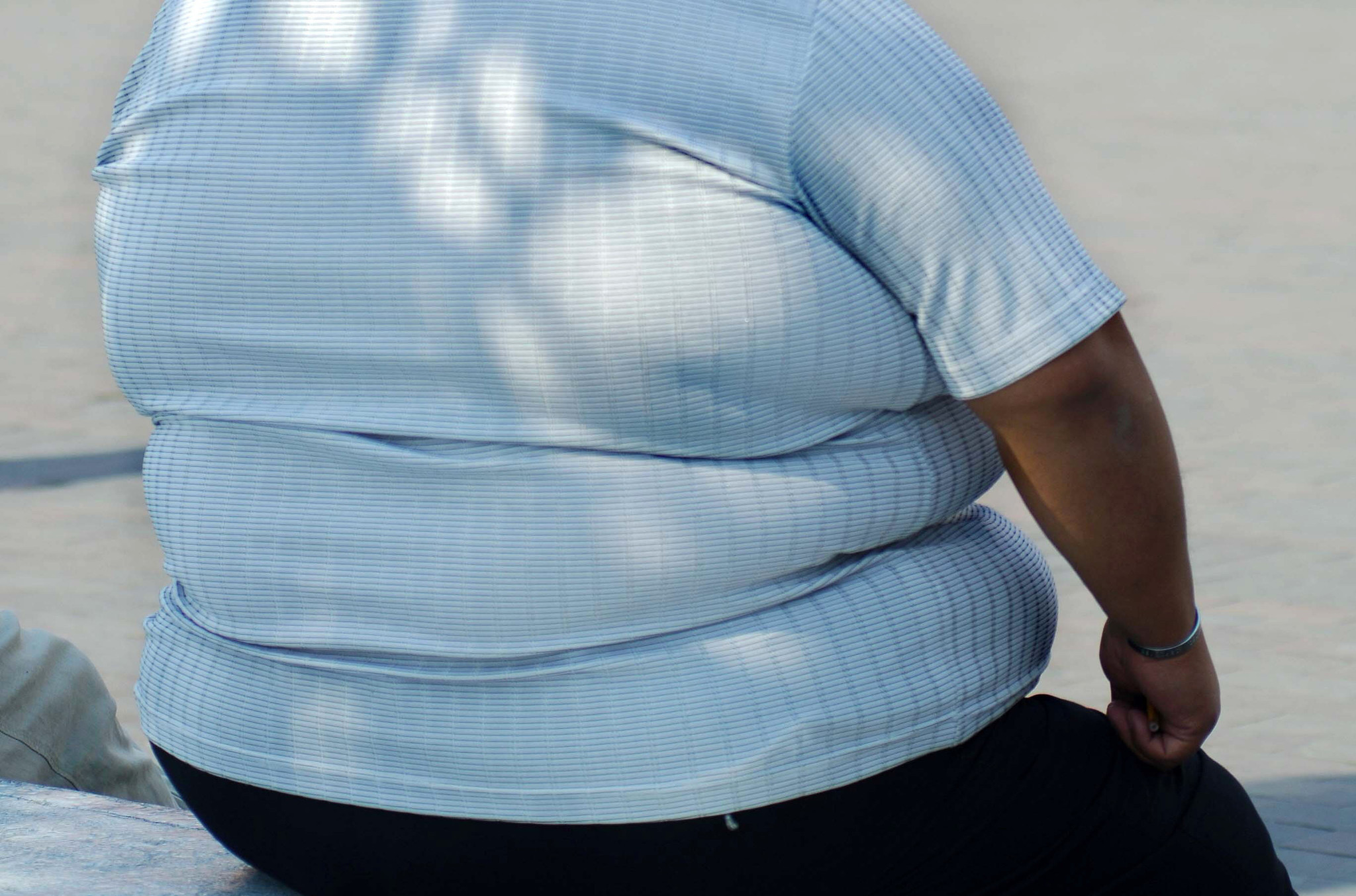 Scientists find how obesity gene works, a clue to treatment