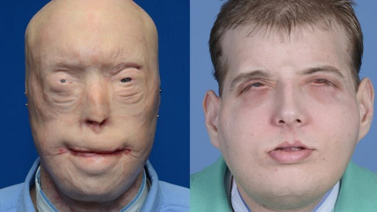 face transplant New York