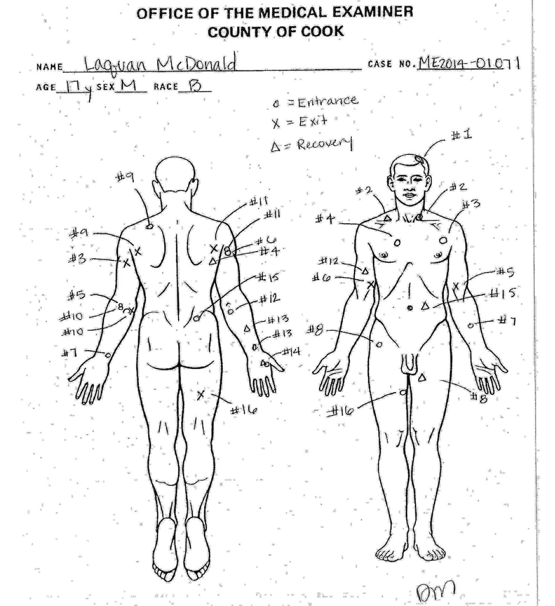 shooting autopsy diagram
