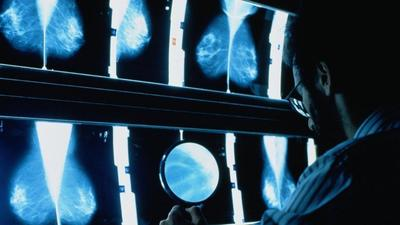 New method for predicting breast cancer risk suggests about 30% of cases could be prevented