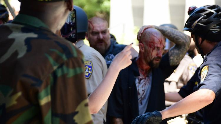 A man is treated after attacked during a rally in Sacramento on June 26. (Steven Styles / Associated Press)
