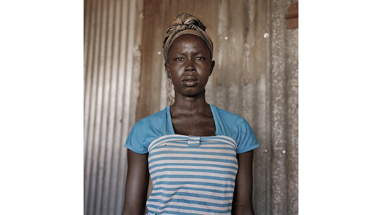 """""""He slashed me, and he cut my throat,"""" Agnes Keji said of her brother after she refused to be married off to a 70-year-old man."""
