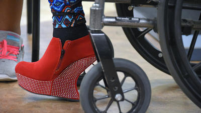 Johns Hopkins students create high-heeled prosthetic