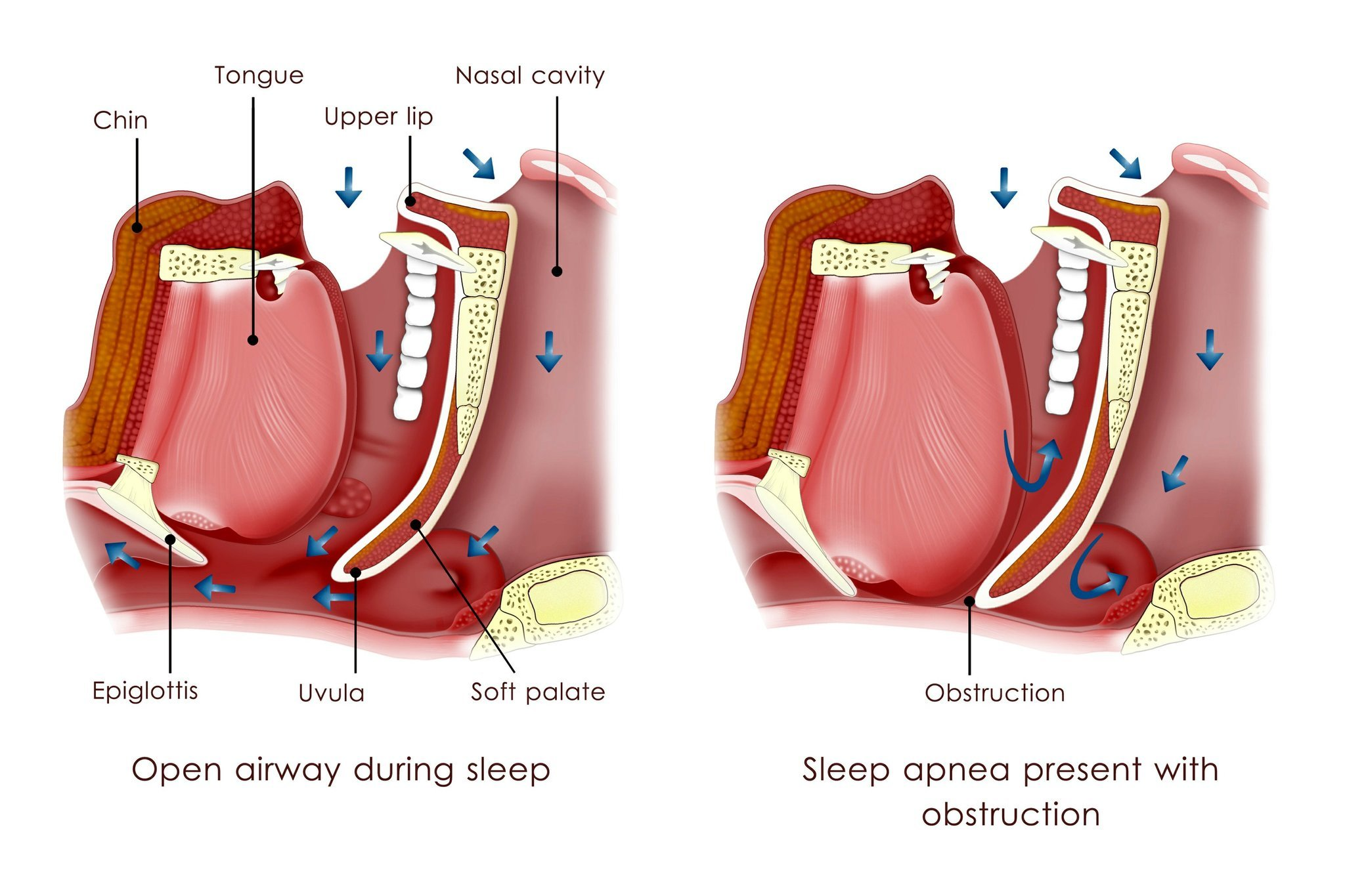 Obstructive sleep apnea can be an underestimated foe