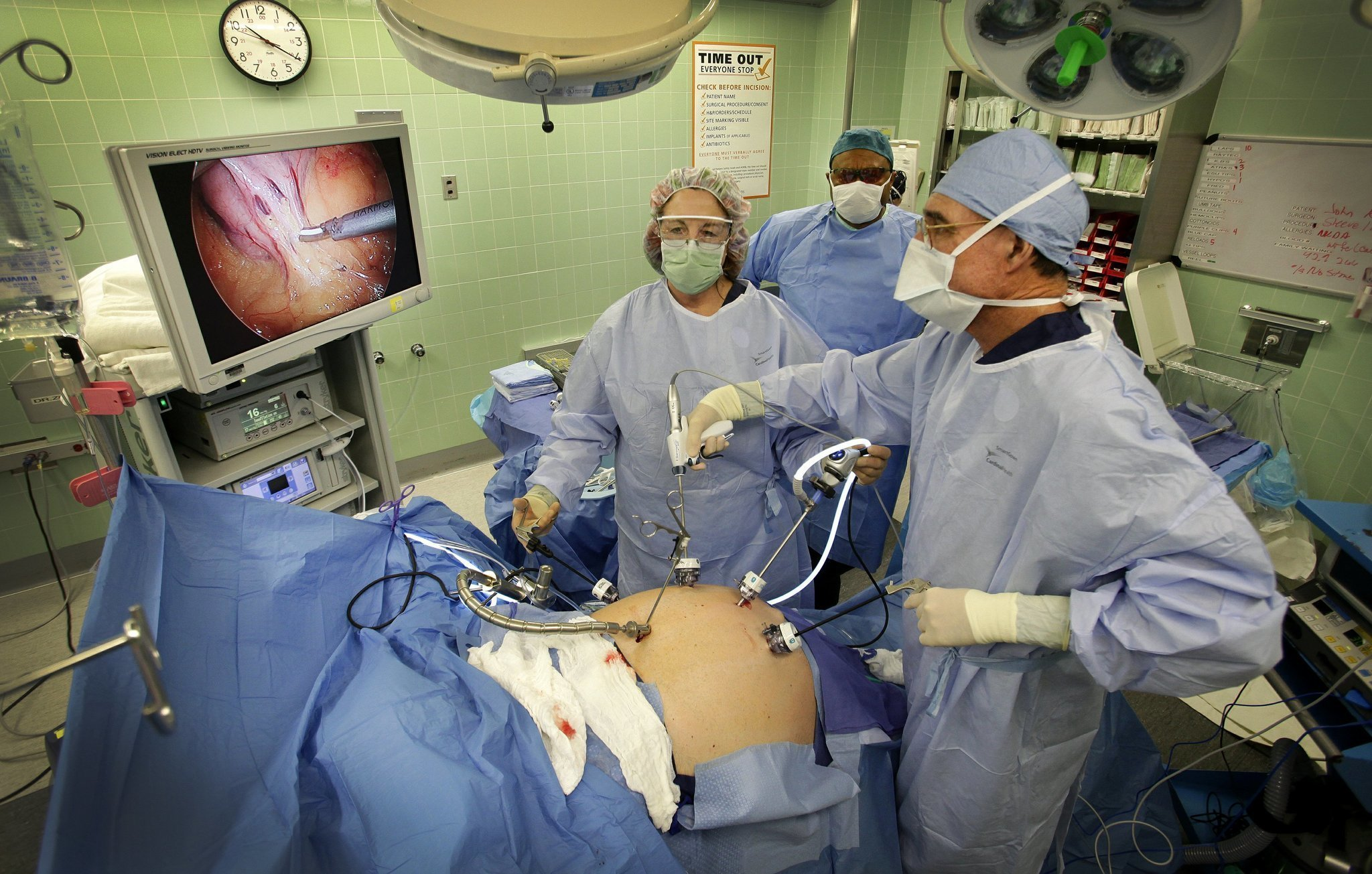 Scripps Mercy busiest in weight-loss surgeries - The San ...