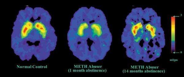 Meth Brain Harm Cut By Medicinova Drug