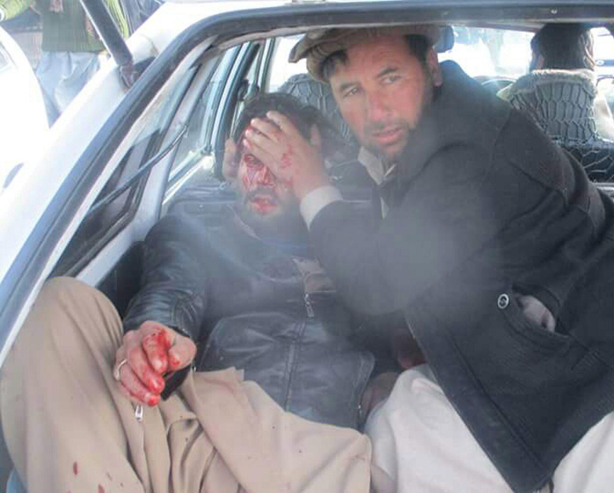 Powerful bomb rips through market in Pakistan, killing 22 people