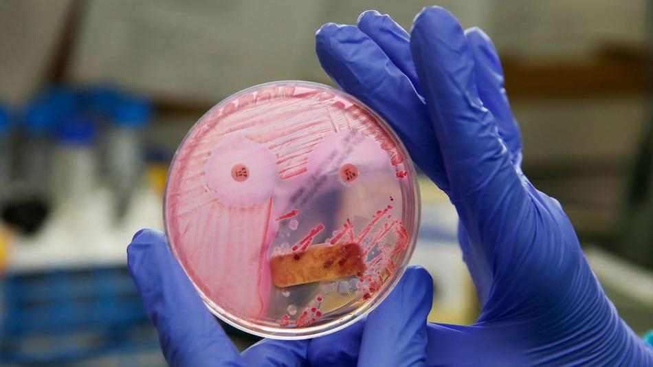 Patients are tested for the presence of the deadly, antibiotic-resistant bacteria known as CRE by pl