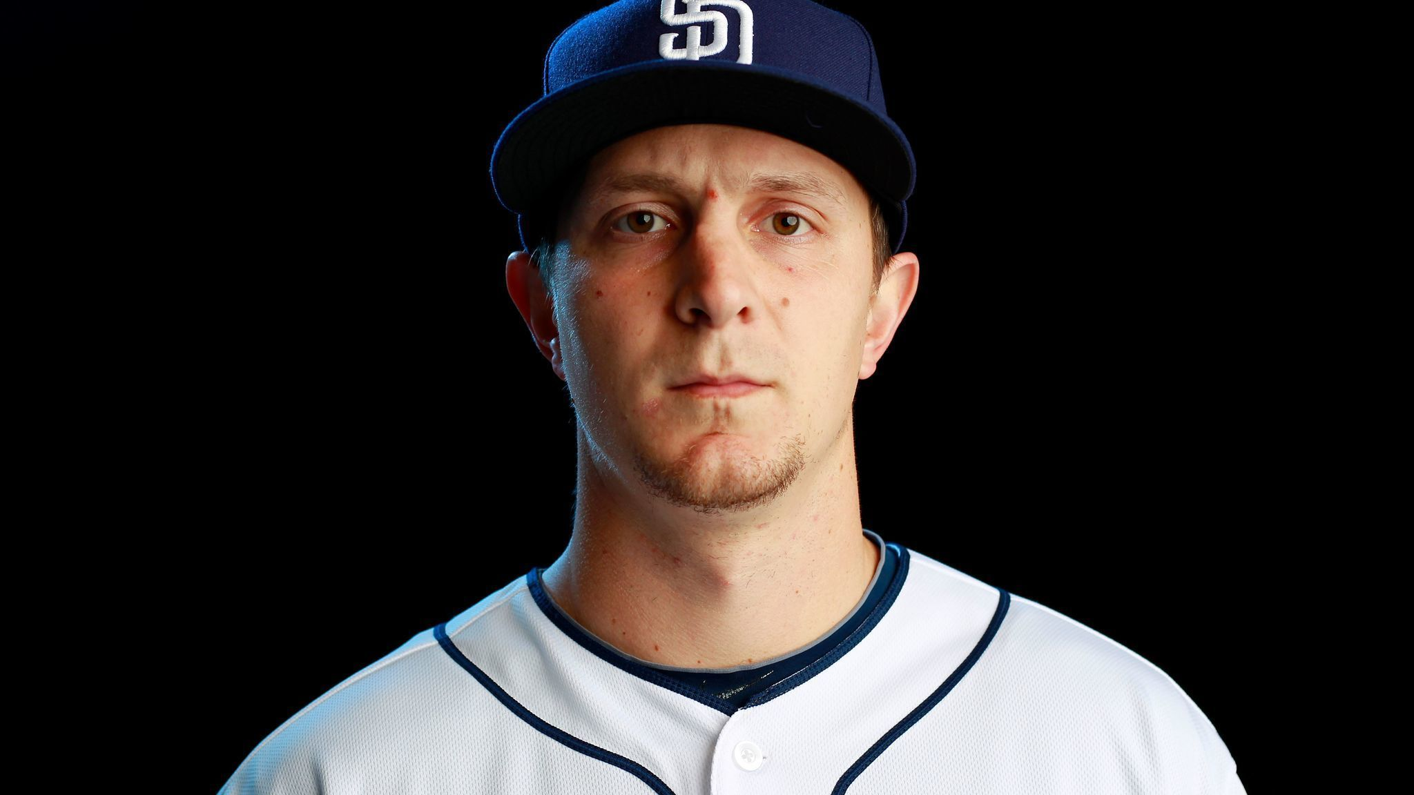 Sd-sp-padres-alex-dickerson-back-could-miss-season-20170613