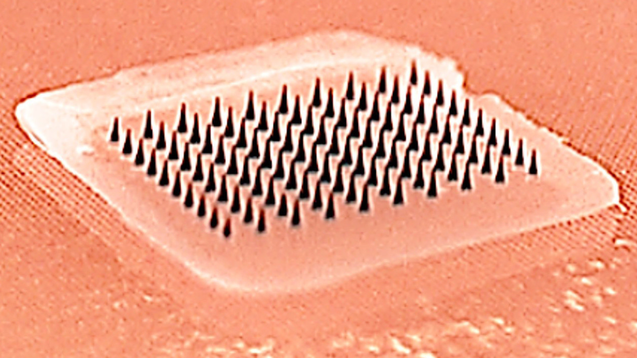 The microneedle array. When pressed into the skin, the tiny needles dissolve, carrying flu vaccine into the skin.