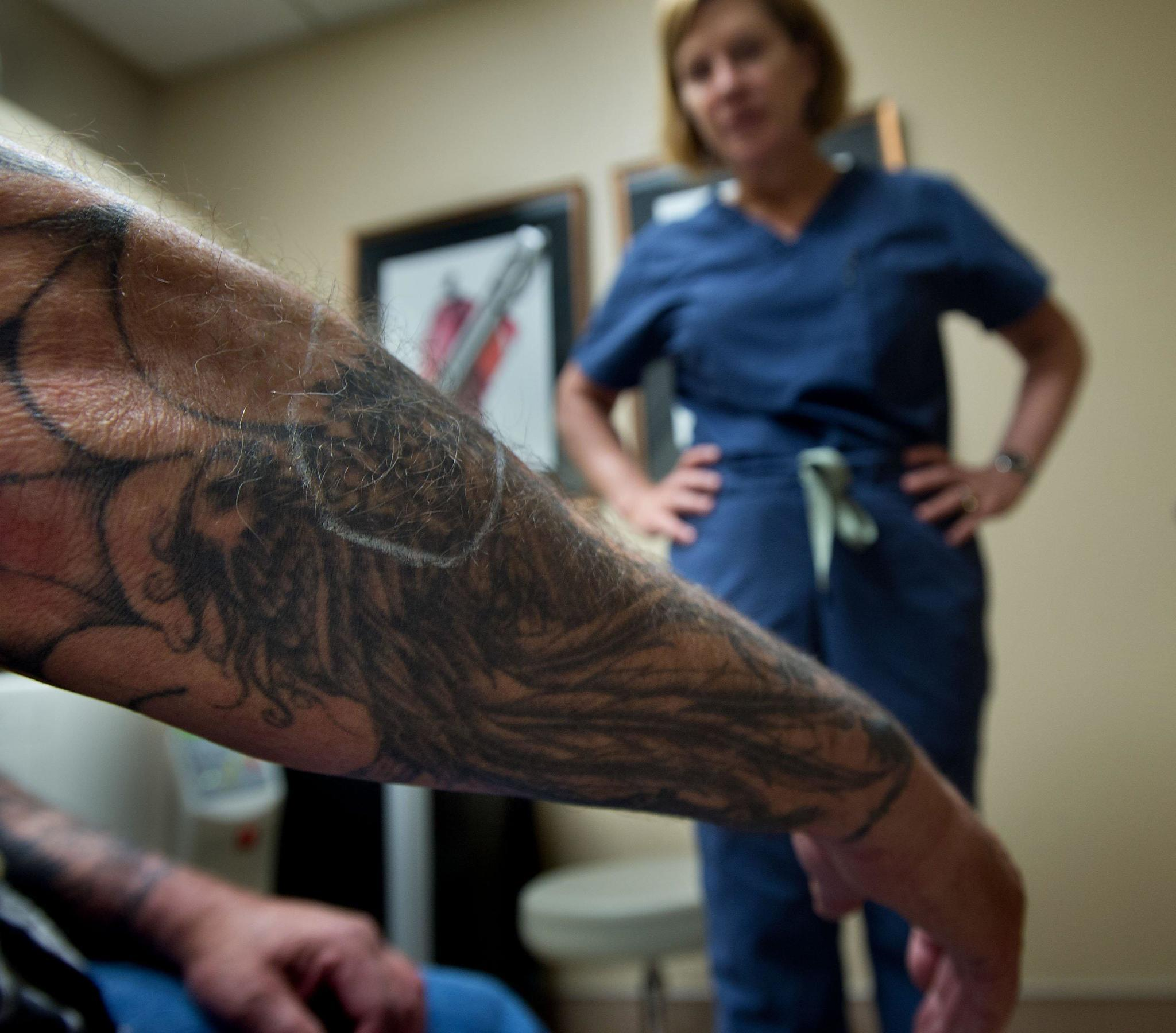 Tattoo remorse what you need to know about erasing your for Laser tattoo removal chicago