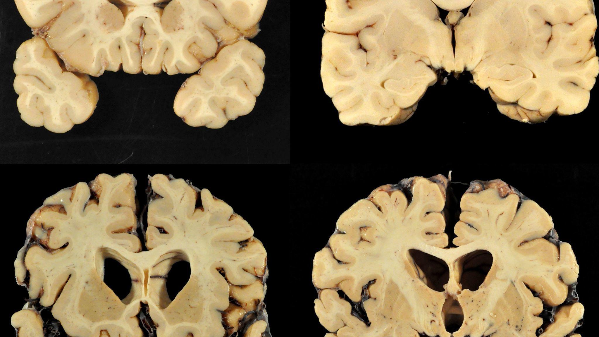 Sd-sp-pfd-concussion-cte-hysteria-truth-0726