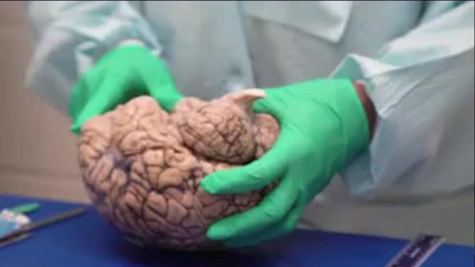 Chronic traumatic encephalopathy: Study describes 68 CTE ...