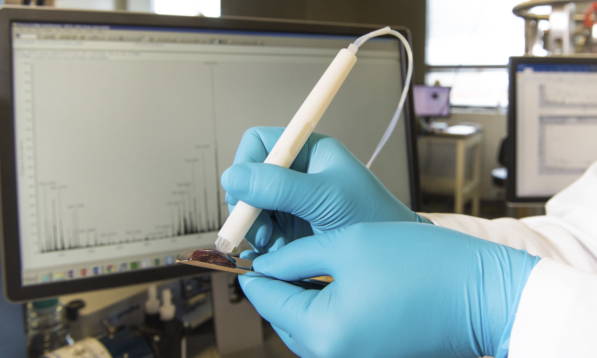 Cancer pen could help surgeons detect tumors in seconds