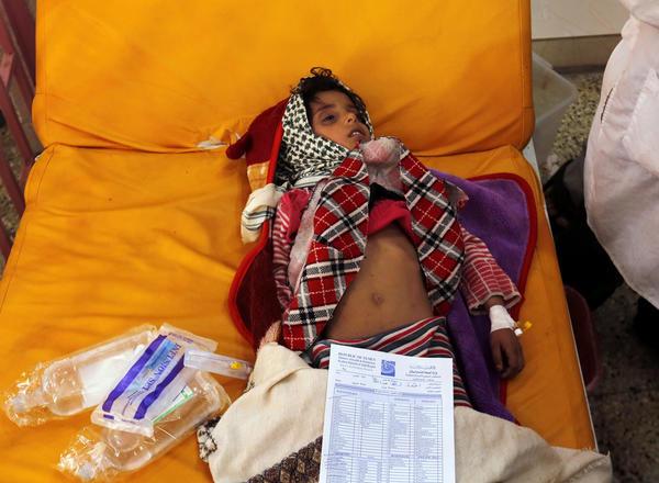A Yemeni girl receives treatment amid a cholera outbreak at a hospital in Sana, Yemen, in September 2017. (ARHAB/EPA-EFE / REX / Shutterstock)