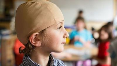 Thousands expected to wear bald caps in solidarity with cancer patients