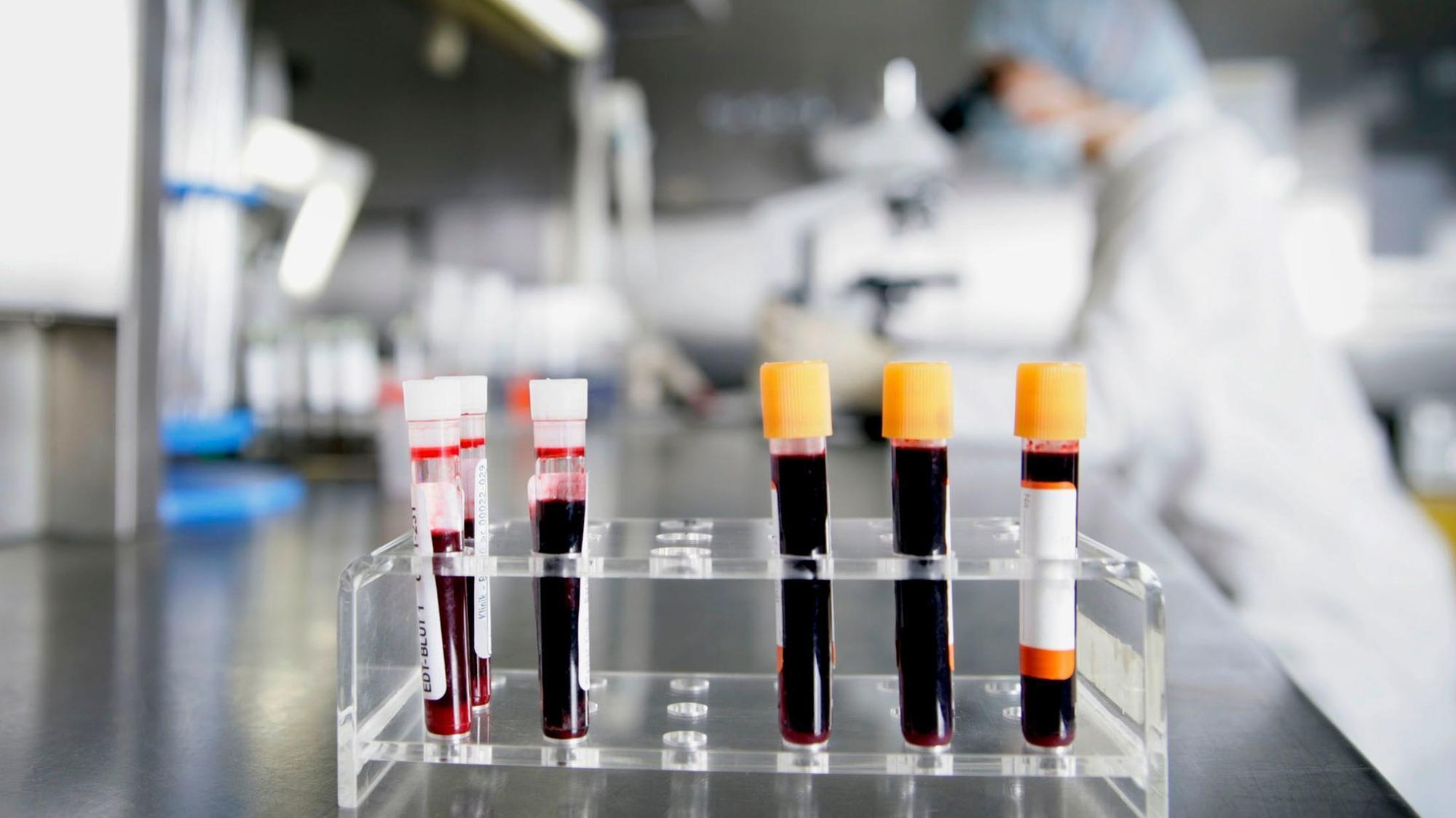 blood cancer Blood cancer is an umbrella term for cancers that affect the blood, bone marrow and lymphatic system there are three main groups of blood cancer: leukaemia, lymphoma.