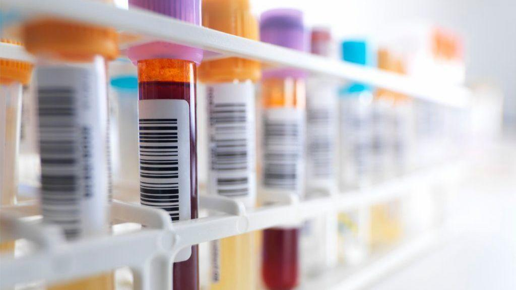 'One-stop' blood test for cancer shows early promise