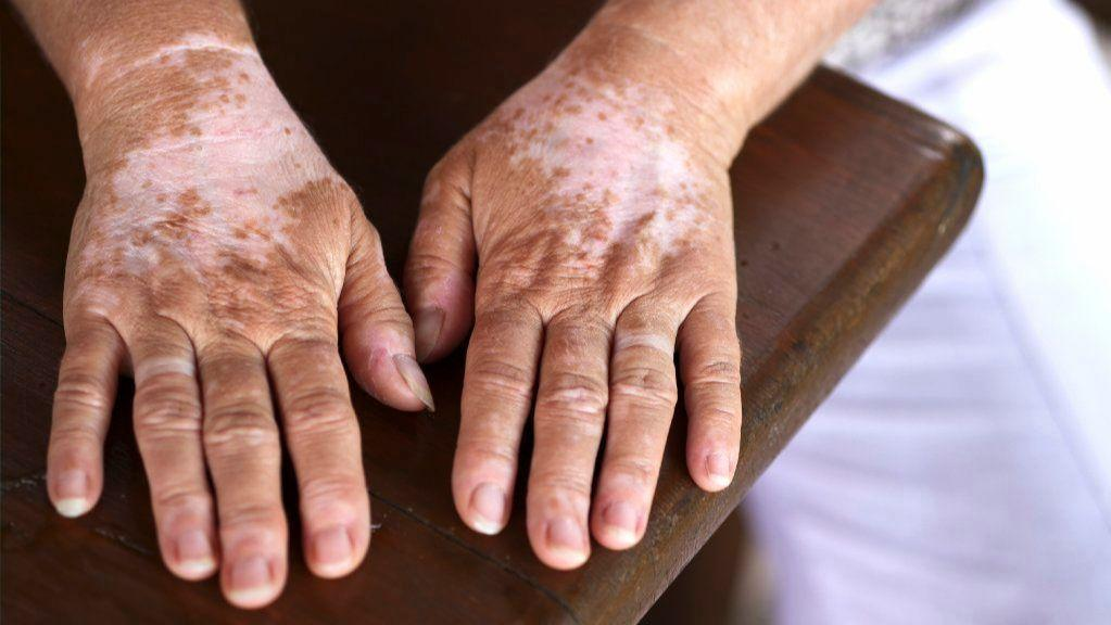 New Treatment Could Be Breakthrough For Vitiligo