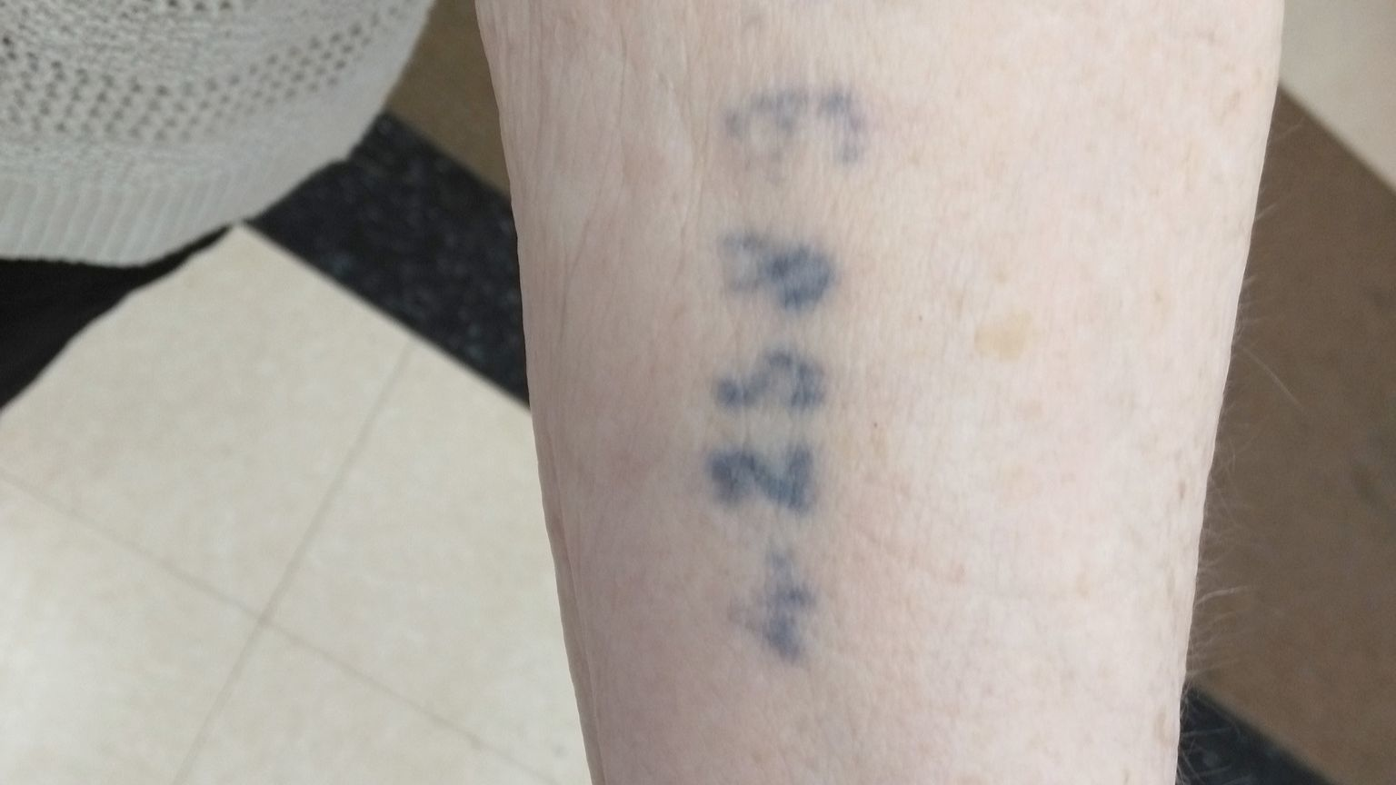 Rose Schindler displays a tattoo on her arm that identified her as A25893 when she was in the Auschwitz concentration camp during World War II.