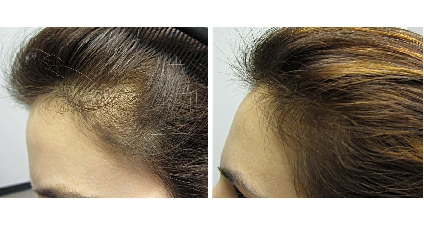Hair regrowing