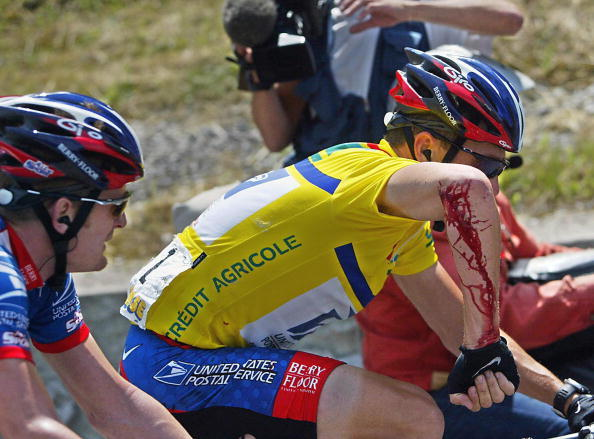 Lance Armstrong shows his injured arm to the doctor of the Dauphine Libere on June 13, 2003, after he fell during the 5th stage of the cycling race.
