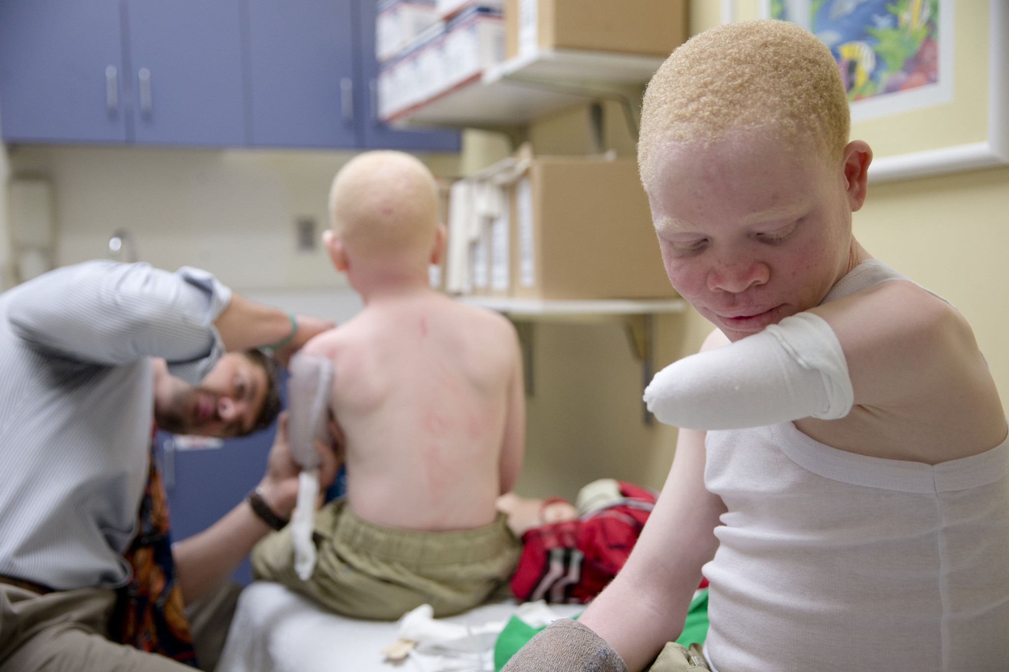 New Limbs And New Hope For Africa S Hunted Albino Children