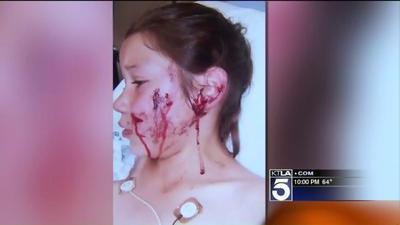 8 Year Old Girl Gets Stitches After A Pit Bull Attack