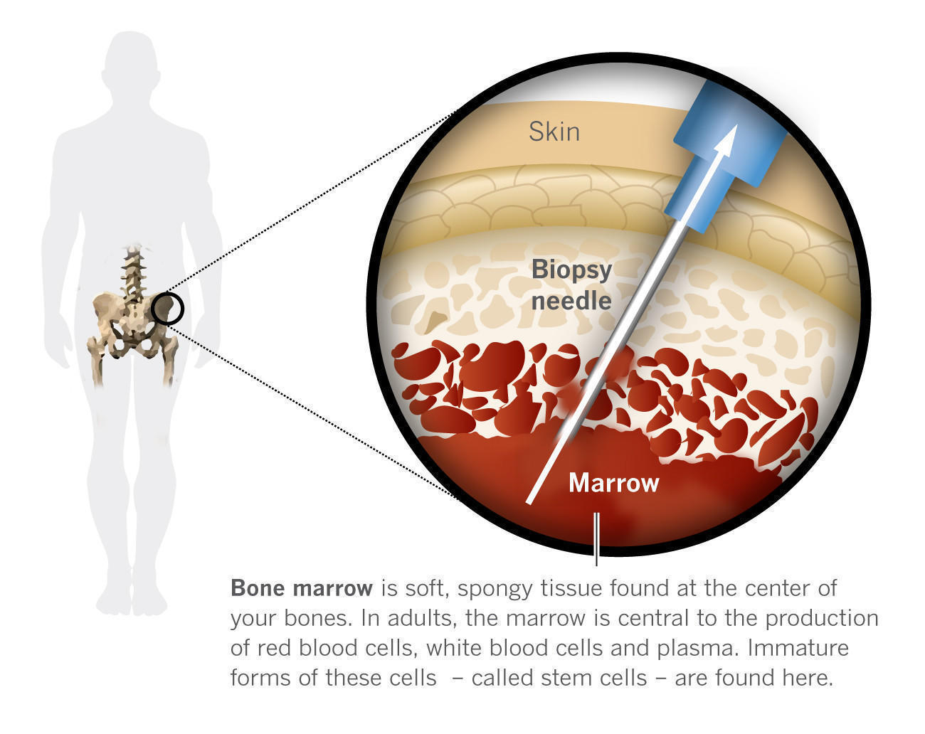 Repairing Muscles With Stem Cell Therapy La Times