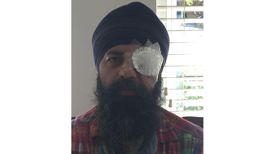 Maan Singh Khalsa was attacked and beaten, and his hair was cut off in Richmond, Calif., in 2016.