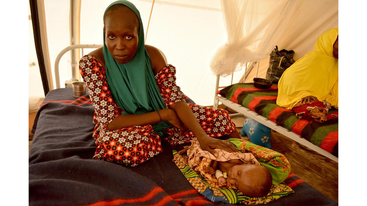 Yagana Goni's 3-month-old baby, Mohammed, is so weak that when he opens his tiny mouth to cry, no sound escapes.
