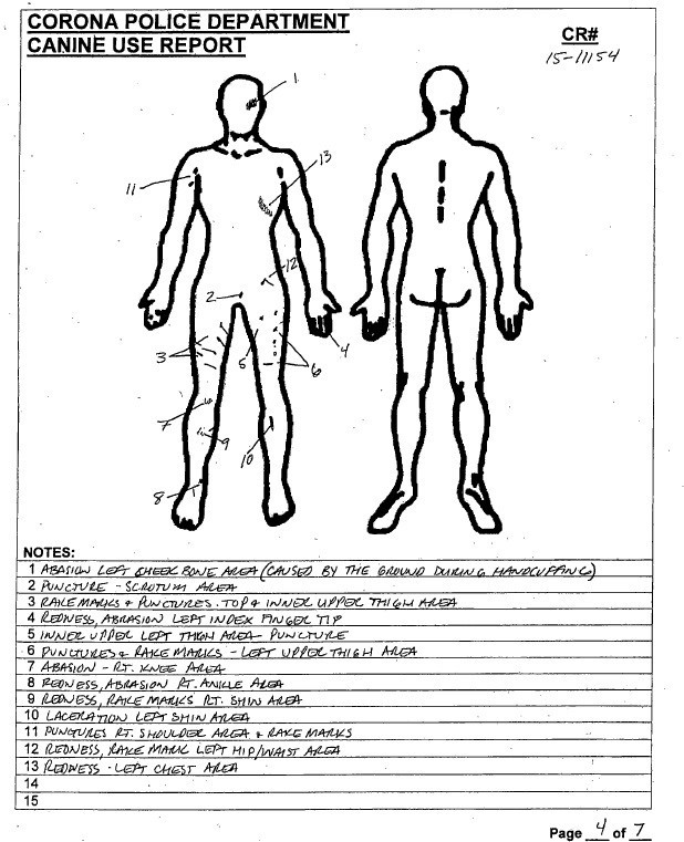 The police canine-use report shows the injuries Brandon Martin suffered during his apprehension by Corona police.