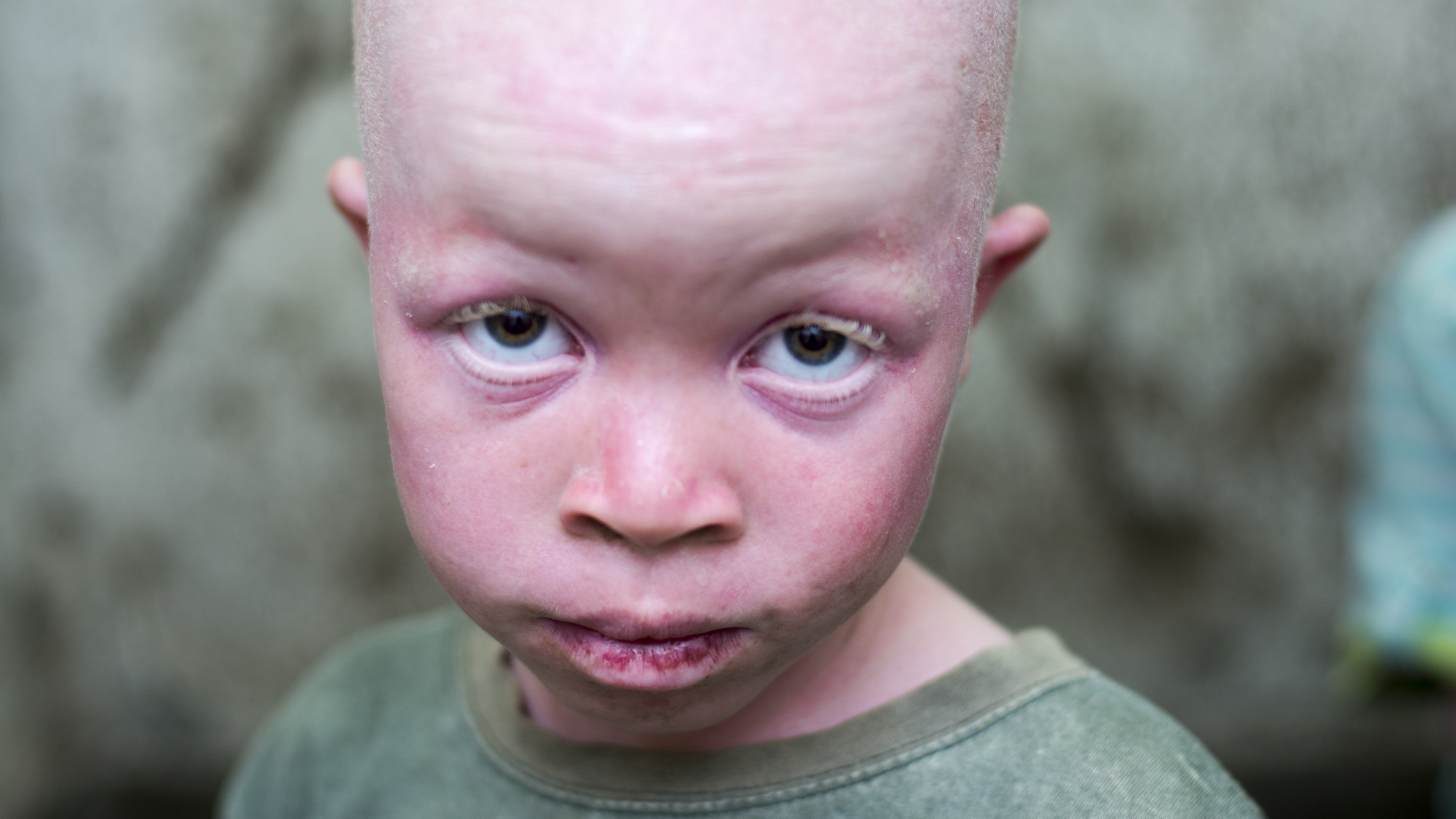 In parts of Africa, people with albinism are hunted for ...