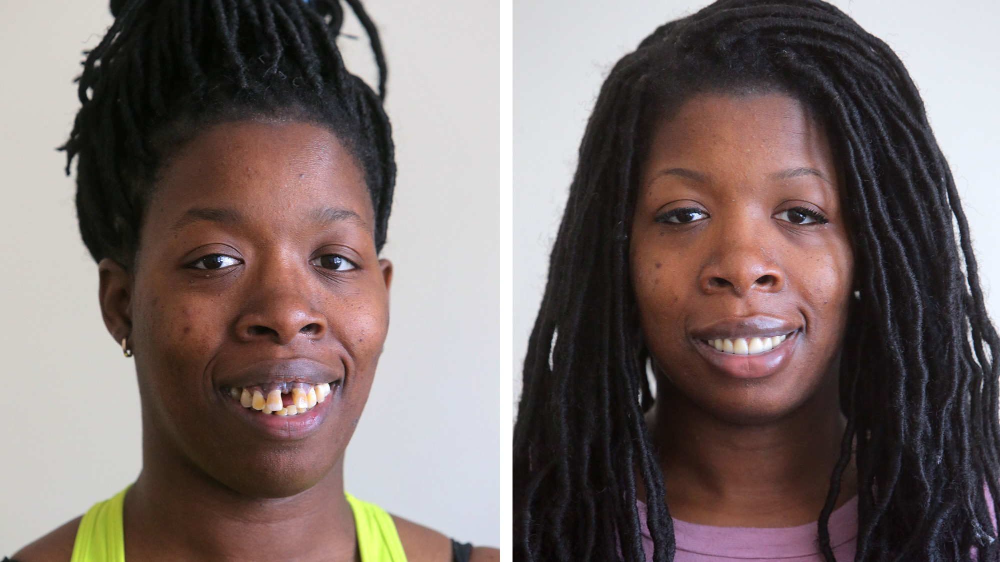 How One Woman Got A New Smile After Severe Online Bullying Chicago