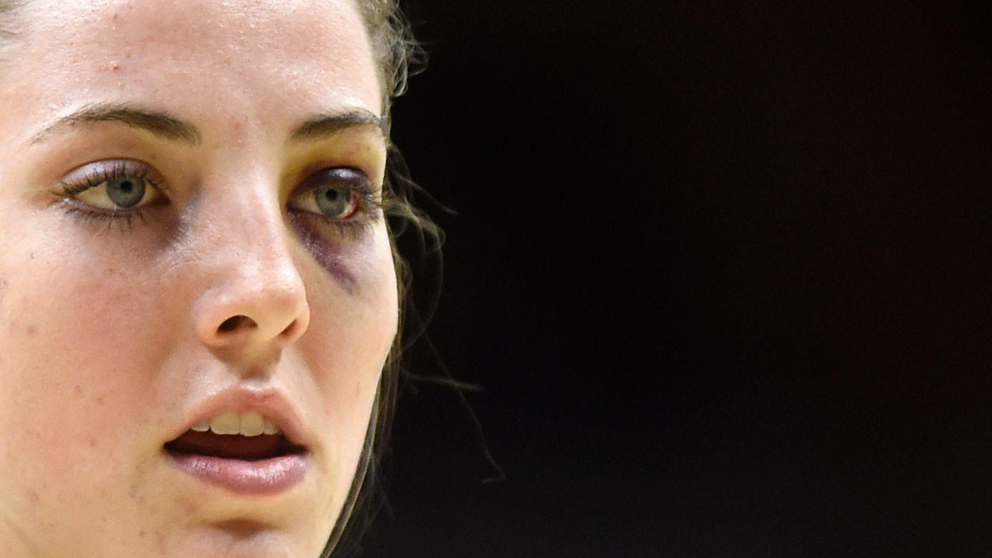 Katie Lou Samuelson Injures Ankle In Uconn S Victory Over