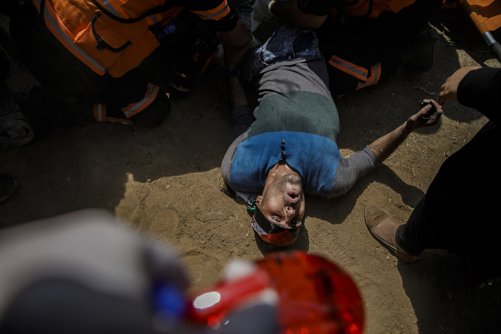 GAZA CITY, GAZA — MONDAY, MAY 14, 2018: A Palestinian man grimaces as he is treated by medics after