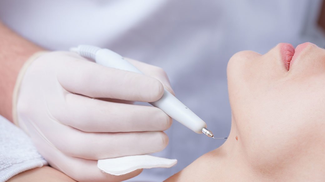Three Best Mole Removal Pens Chicago Tribune