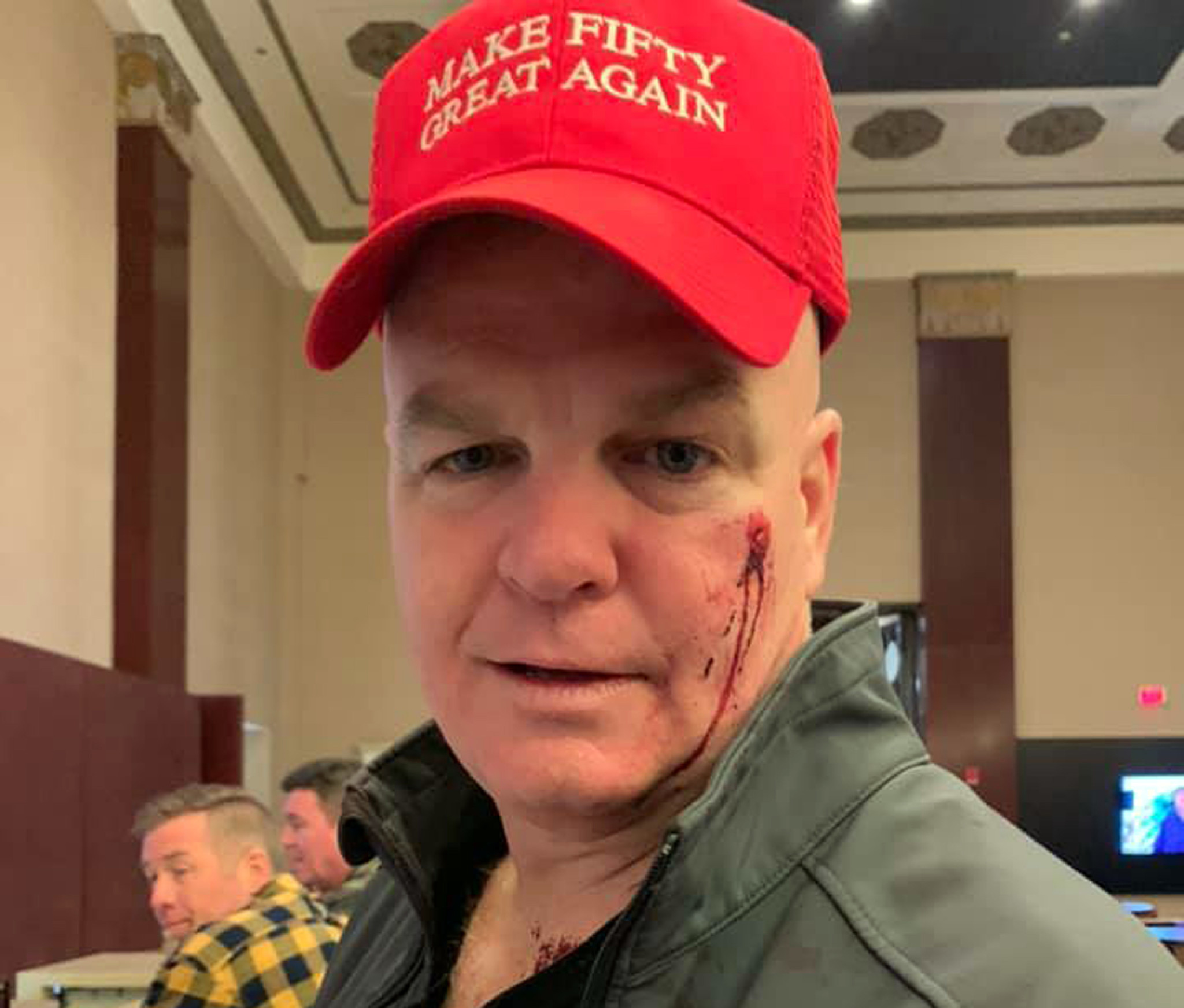 Retired NYPD cop says woman punched him in face over 'Make Fifty Great Again' birthday hat