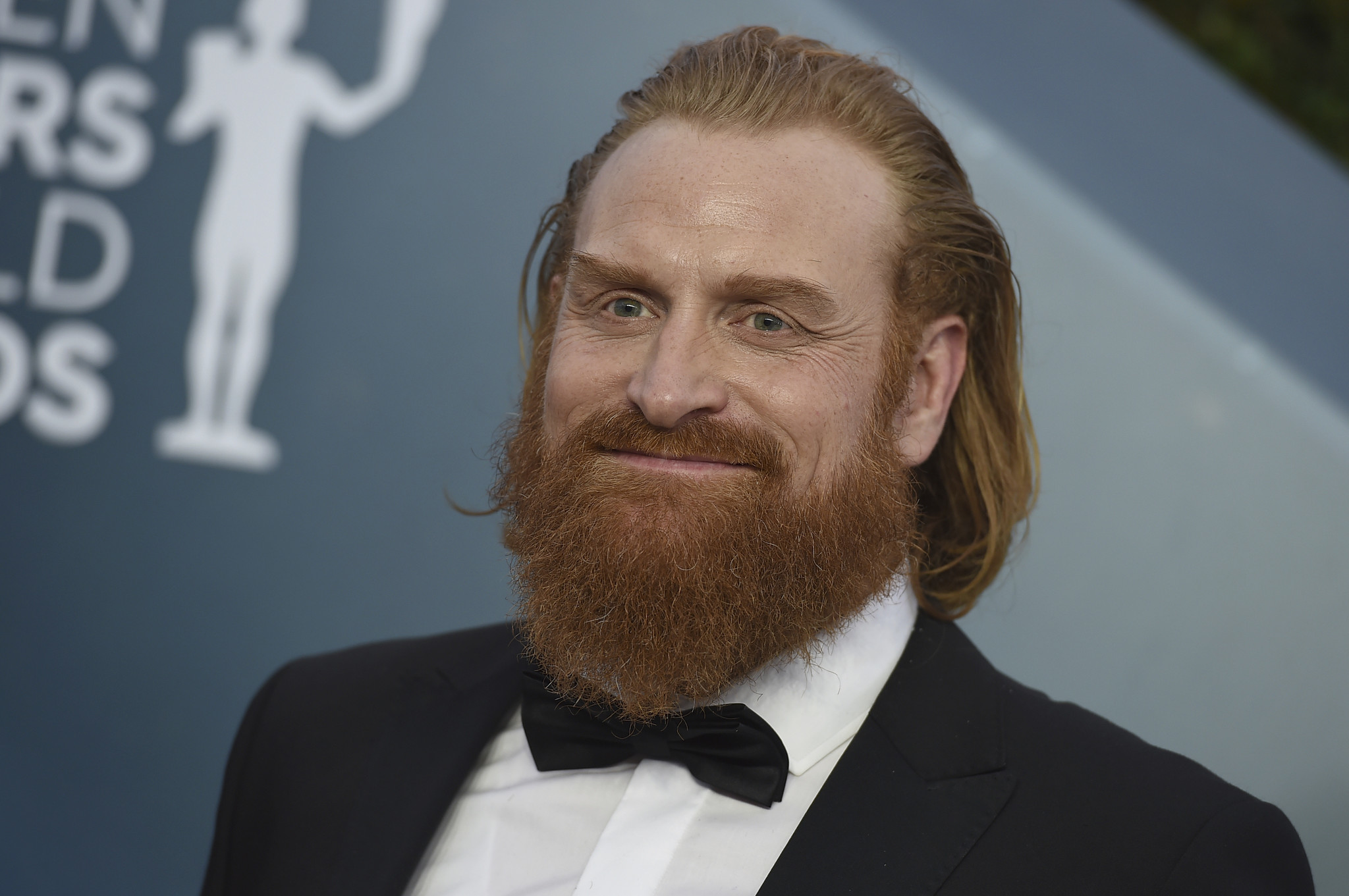 Kristofer Hivju from 'Game of Thrones' has coronavirus
