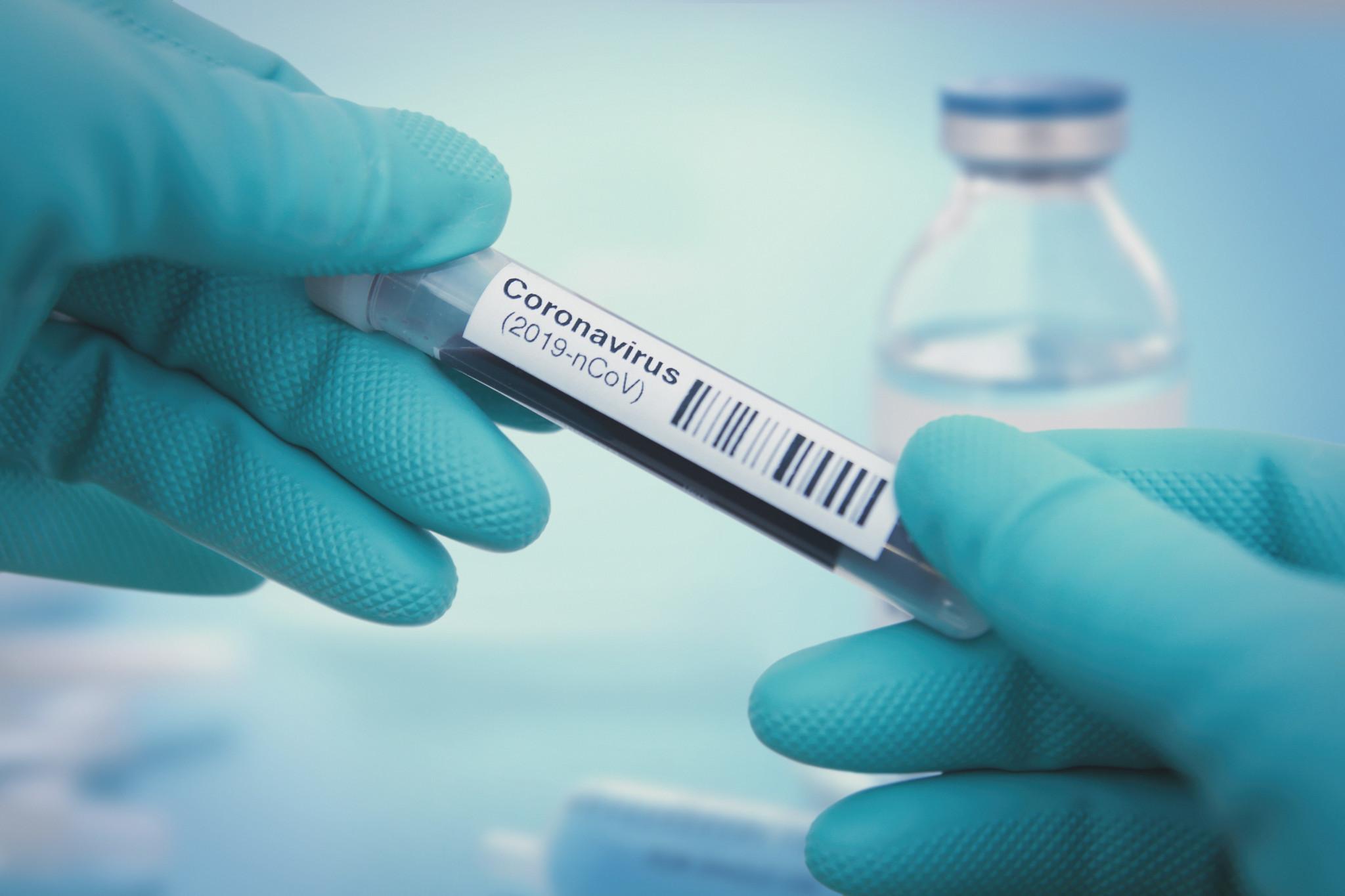 NYC nurse dies as medical staff overwhelmed with coronavirus cases